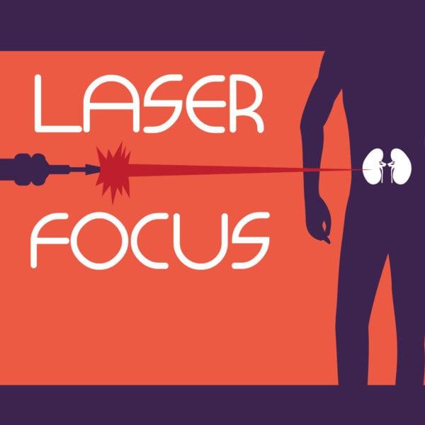 laser graphic